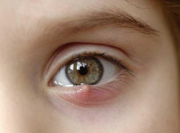 conjonctivite et l'orgelet aux yeux