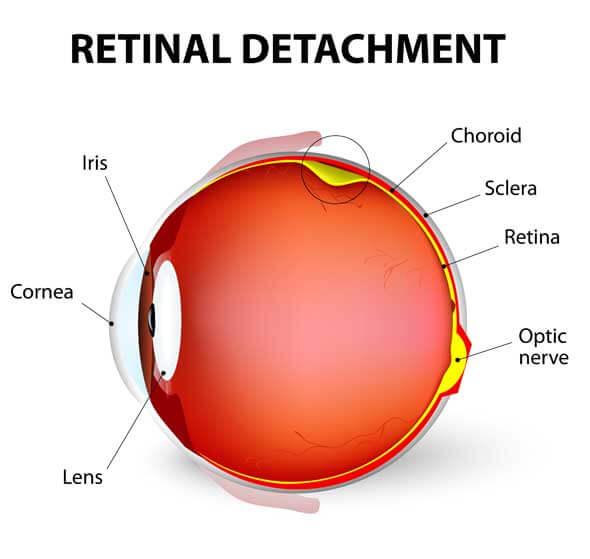 décollement de la rétine pour l'oeil